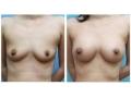 自体脂肪隆胸对比图2
