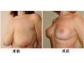 乳房下垂对比图