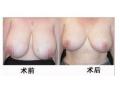 巨乳缩小对比图2