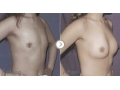 假体隆胸对比图2
