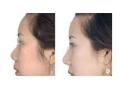 隆鼻前后对比图1