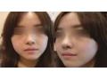鼻头缩小对比图1