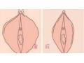 阴蒂肥大对比图1