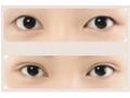 <b>做双眼皮手术会不会有什么风险呢?</b>
