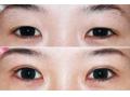 内双能做双眼皮吗?