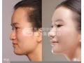 韩式假体隆鼻是否安全?