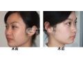 韩式隆鼻安全性怎样?