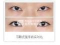 双眼皮手术的效果是永久的吗?