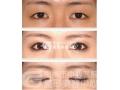 双眼皮手术会影响视力吗