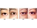 埋线双眼皮能保持多久?