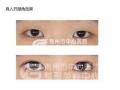 做双眼皮手术哪种好?