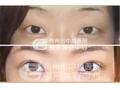 双眼皮手术有哪几种?