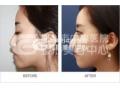假体隆鼻手术之后效果自然吗