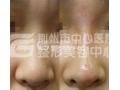 假体隆鼻的优势有哪些