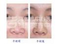 假体隆鼻手术切口明不明显?