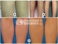激光脱腿毛的效果怎么样?