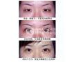 单眼皮能用开眼角手术变大吗?