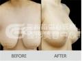 乳房下垂应该怎么做?