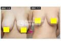 巨乳缩小都有哪些手术方法?