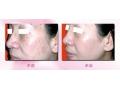 激光祛斑帮助年轻妈妈告别妊娠斑