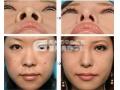 鼻头缩小术安全吗?