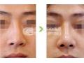 沙市鼻头缩小手术的价格介绍