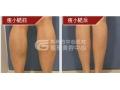 小腿吸脂后的恢复期多久?