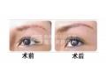 做切眉手术会留下疤痕么?