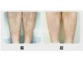 腿部激光脱毛术存在哪些优势?