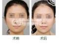 BOTOX瘦脸针,打造属于你的精致小脸