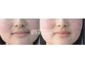 脱唇毛的方法有哪些呢?