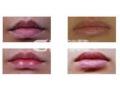 <b>自体脂肪丰唇有什么优点是什么呢?</b>