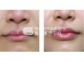 自体脂肪移植注射丰唇手术怎么样?