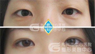 单眼皮开眼角的效果好吗?