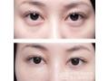 <b>祛眼袋,一次手术,带来五大功效!</b>
