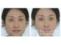 下颌角整形有哪些方法?
