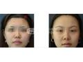 【专家解答】荆州医院种植眉毛效果好吗?