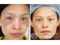 【专家解答】激光祛斑真的会让皮肤越来越薄吗