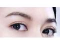 割双眼皮,改善你的小眼睛