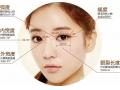 【专家介绍】做双眼皮之前一定要了解这四点