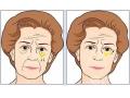 荆州祛眼袋手术能维持多久呢
