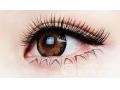 【专家解答】割双眼皮术后应该怎么护理