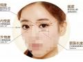 怎么选择合适自己的双眼皮