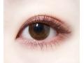 <b>开眼角手术什么时候能恢复自然呢</b>