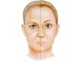 面部填充应该注射玻尿酸还是选择自体脂肪移植呢