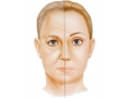 <b>面部填充到底应该注射玻尿酸还是应该选择自体脂肪移植呢</b>