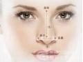 【专家介绍】五种常见硅胶隆鼻失败的现象以及