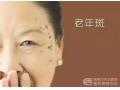 老年斑过早形成的原因是什么呢?如何有效祛除老