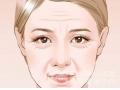 <b>董洁主任解答:为什么当我们努力睁大眼睛的时候,抬头纹就出来了</b>