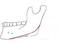 董洁专家介绍:下颌角手术术后应该怎样护理